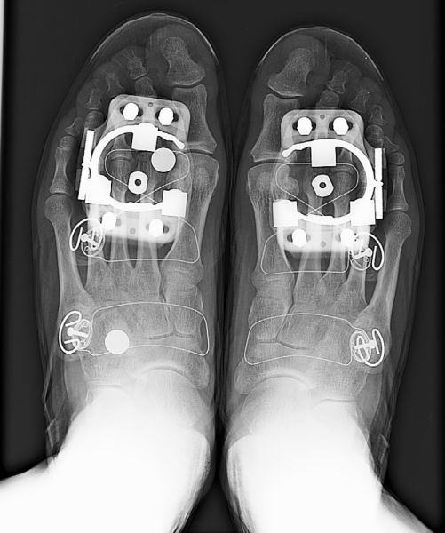 2 of 4 Part Series: Bike Fitting, Foot Support and Cleat Position